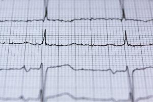 Un tracciato cardiaco per invitare ad un controllo per la tua associazione, controlla il tuo statuto